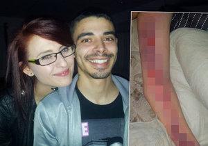 Katie Widdowson zemřela poté, co se nechala při sexu spoutat.