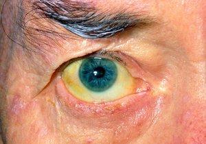 Virová hepatitida je hlavní prícinou rakoviny a cirhózy jater.