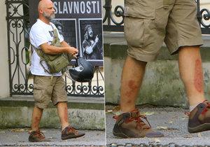 Herec Hynek Čermák upadl a sedřel si ošklivě holeně.