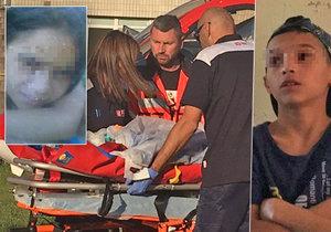 Podle policie podpálil Vanessku (9) její bratr schválně.