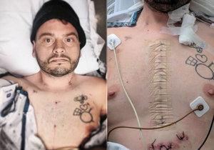 Conan Soranno nezemřel sám. Jeho přátelé k němu přijeli, když ležel na smrtelné posteli.
