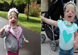 Malá Beátka trpí vzácným Treacher Collinsovým syndromem.