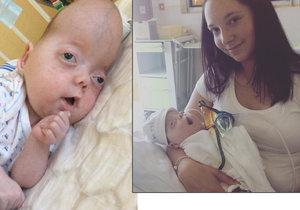 Zemřel Sebastianek, miminko s vzácným syndromem, kterému drželo palce celé Česko.