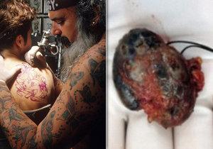 Myslela si, že má rakovinu, ve skutečnosti ale její imunitní systém reagoval na její 15 let staré tetování. (Ilustrační foto)