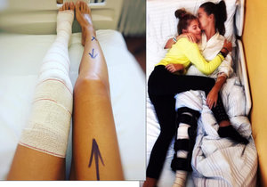 Iva Kubelková má po operaci kolene.