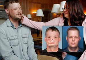 Žena si sáhla na obličej mrtvého manžela!