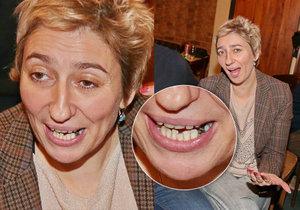 Simona Babčáková předvedla rozpadlý zub.