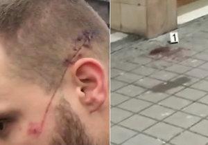 Napadený muž má na hlavě řeznou ránu.