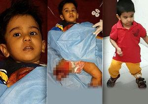 Malý Mohammed přišel při vlakové nehodě o obě nohy. Lékaři mu je ale přišili a chlapec už se naučil znovu chodit.