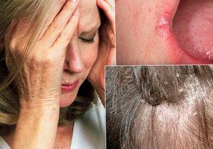 Nenápadné varovné příznaky mohou ukazovat na stres i vážnou nemoc. (Ilustrační foto.)