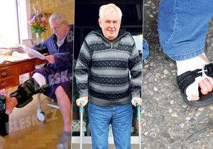 Miloš Zeman se potýkal s řadou zranění a zdravotních komplikací.
