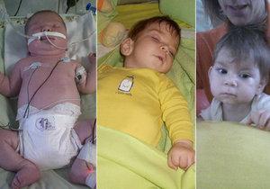 Matyášek se po porodu dusil. Nyní má dětskou mozkovou obrnu a poškozený zrak.