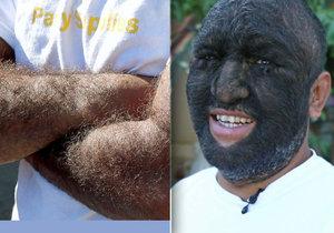Larry Gomez má tělo z 98 % pokryté chlupy.