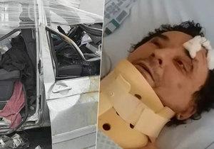 Frontman kapely Plexis o děsivé nehodě: Měl jsem skalpovanou půlku hlavy! Byl krůček od smrti