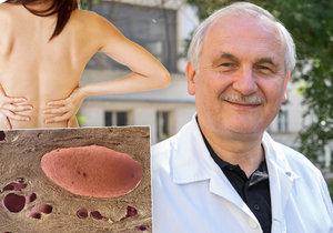 Profesor Vladimír Tesař se léčbě ledvin věnuje už 30 let.