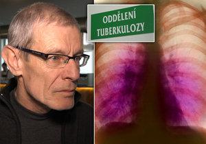 Vladimír (63) strávil dva měsíce v izolaci kvůli tuberkulóze. Lékaři: Česko je rarita
