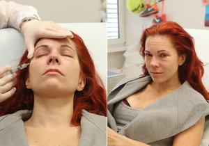 Zpěvačka Míša Nosková šla na zkrášlovací proceduru a takhle dopadla.