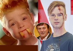 Syn Trávníčka znovu v akci: Kečupír z reklamy si zahrál v Ordinaci