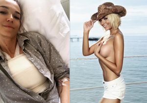 Hana Reinders má menší prsa.