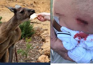 Počet napadení hladovými zuřivými klokany stoupá. Vláda žádá turisty, aby nekrmili zvířata.
