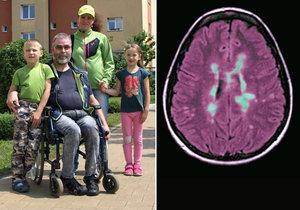 Alena trpí roztroušenou sklerózou. Na snímku je s celou svojí rodinou.