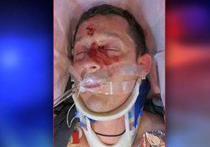 Na Nymbursku srazil zfetovaný řidič cyklistu: Zraněného muže nikdo nezná, policie prosí o pomoc.