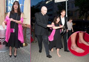 Tereza Brodská si na party poranila nohu