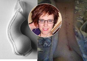 Petra (30) z Prostějova, pacientka s voperovanou síťkou k aortě.