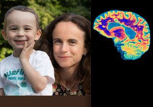Lenka trpí roztroušenou sklerózou, přesto se jí narodil zdravý syn
