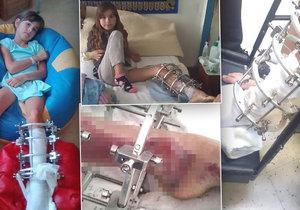 Elišce (9) rozdrtilo auto nohu, rodině chybí peníze na léčbu. Maminka: Nemám ani sílu brečet