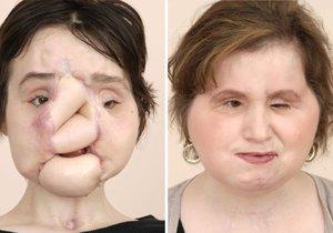 Tvář 21leté Katie před a po poslední operaci