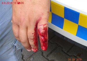 Napadený muž (28) měl obě ruce od krve.