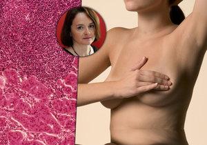 Jak může vzniknout rakovina prsu a jak probíhá léčba?
