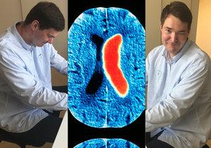 Zdeněk (40) prodělal cévní mozkovou příhodu.
