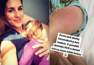 Lucie Křížková přiznala, že její dcera dostala po očkování ošklivou reakci.