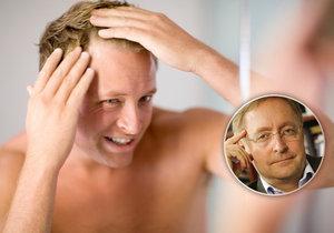 Plešatost je z velké části dědičná záležitost