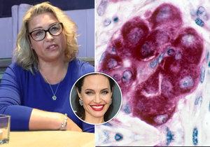 Paní Radka svou nemoc zjistila díky herečce Angelině Jolie.