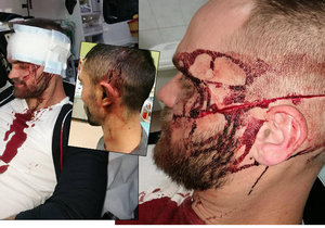 Takhle dopadli mladíci, kteří se zastali dívky a jejího kamaráda. Cizinec je zle pořezal v obličeji a na hlavě, ve středu dostal u soudu podmínku...