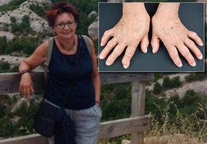 Paní Marie trpí revmatoidní artritidou