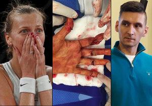 Útok na Kvitovou: Žondra tenistku napadl a pořezal jí ruku, dostal osm let!