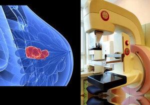 Nový mamograf, který umožňuje vyšetření prsu pomocí využití kontrastní látky, začali používat v Masarykově onkologickém ústavu v Brně.