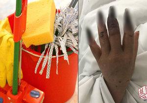 Vánoční úklid dopadl hororově. Žena dostala gangrénu! Zčernaly jí obě ruce