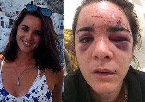 Krásná Andrea ukázala následky brutálního znásilnění