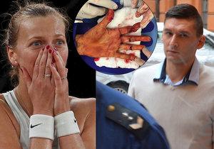 Radimu Žondrovi hrozí za útok na tenistku až 12 let vězení. Svědci z řad jeho známých a spolupracovníků ale tvrdí, že osudného dne byl v práci.