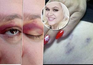 Manželem údajně napadená Monika Štiková