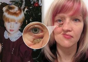 Mirce se rozpadá obličej, pomoci jí může nákladná operace v zahraničí.
