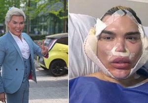 Fibróza v obličeji! Ken Alves musel podstoupit drastický zákrok!