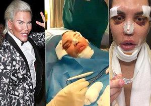Živý Ken podstoupil už 70 operací