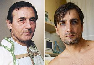 Michal Dočolomanský po slavném tátovi zdědil vážné onemocnění.