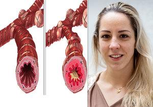 Petra Chocová se léčí s astmatem